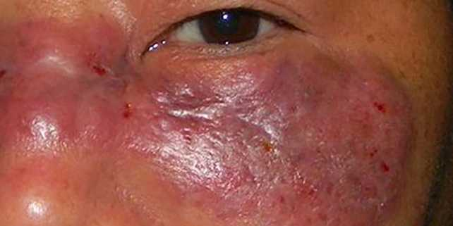Photo of a mold infection called Mucormycosis on the face