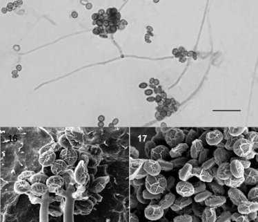 Microscopic view of Stephanosporium fungi