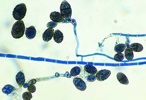 Microscopic image of Ulocladium mold spores